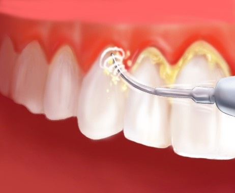 Lấy cao răng để làm gì? NÊN hay KHÔNG NÊN lấy cao răng
